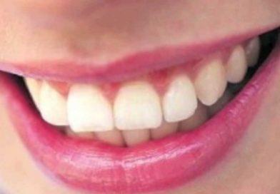 Interessante proposta a Lecco per il benessere della bocca